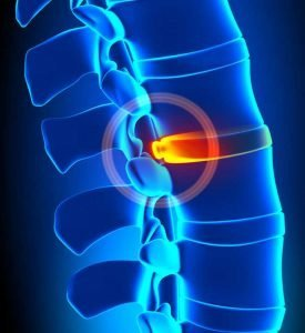 Bulging disc protruding into the spinal column