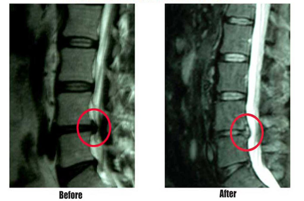 Before and After MRI Herniated Disc treated with IDD Therapy