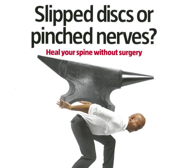 slipped discs or pinched nerves article idd therapy
